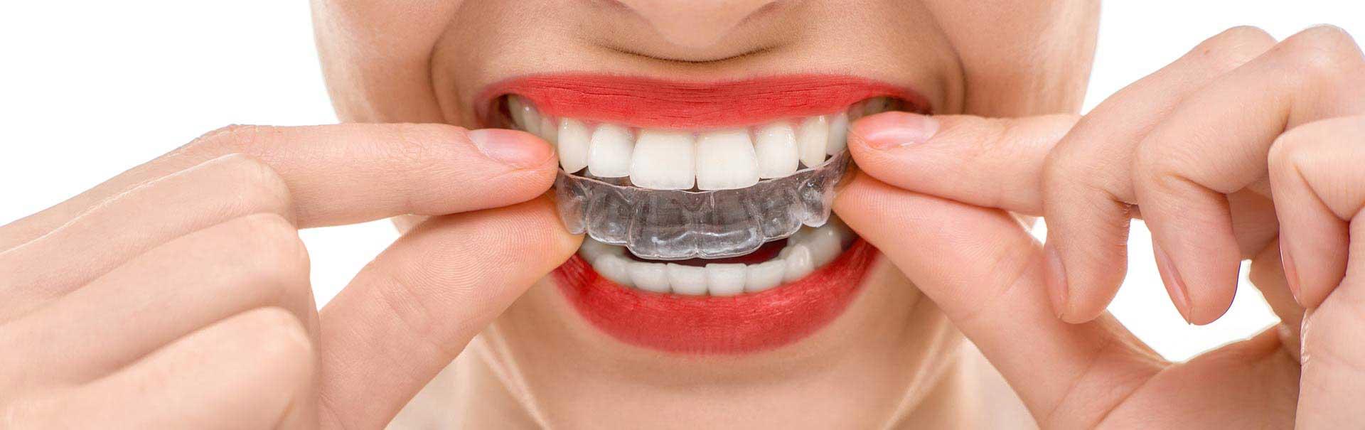 orthodontiki-1