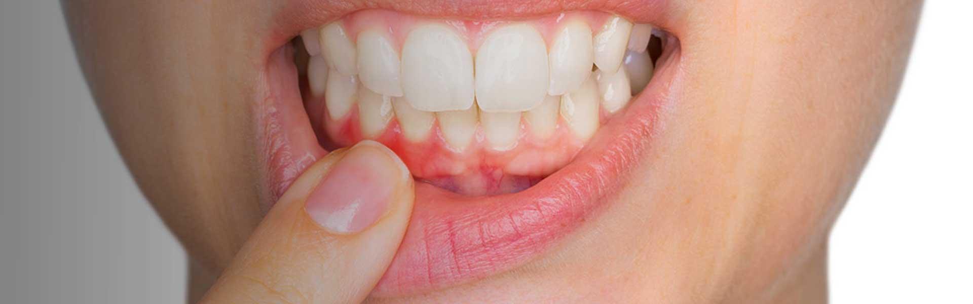 periodontitida-2